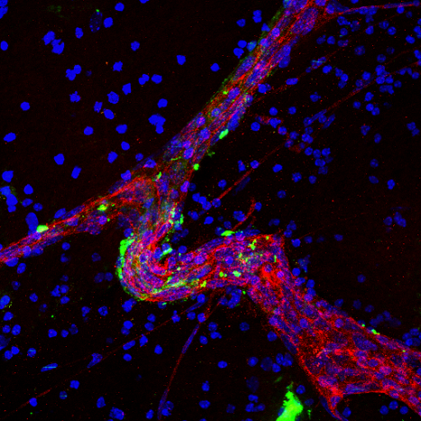 Image of a large blood vessel (red) in brain tissue treated with brain metastatic cell-derived exosomes (green)